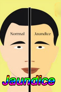 Jaundice Disease